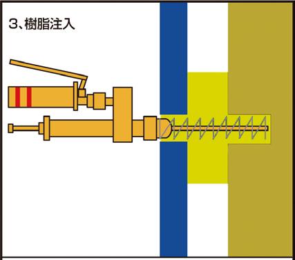 ③樹脂形成スプリングをノズルの先端に装着後、可動式注入ノズル(FSノズル)にて、孔最深部から手前に引きながら樹脂注入を行う。